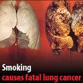 3 jól és 3 kevésbé ismert ok, hogy letedd a cigit