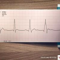 Különös EKG eredményeket rögzítettek