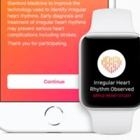 Így lehet beállítani, hogy az Apple Watch egyszer majd mentse meg az életed
