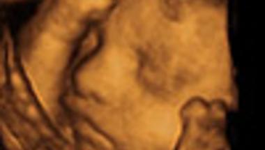 4D ultrahang