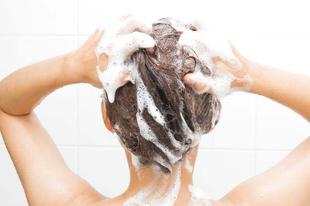 Ekcémás a fejbőrőd?