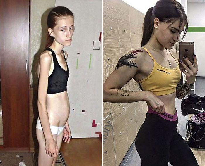 beats_crippling_anorexia_02.jpg