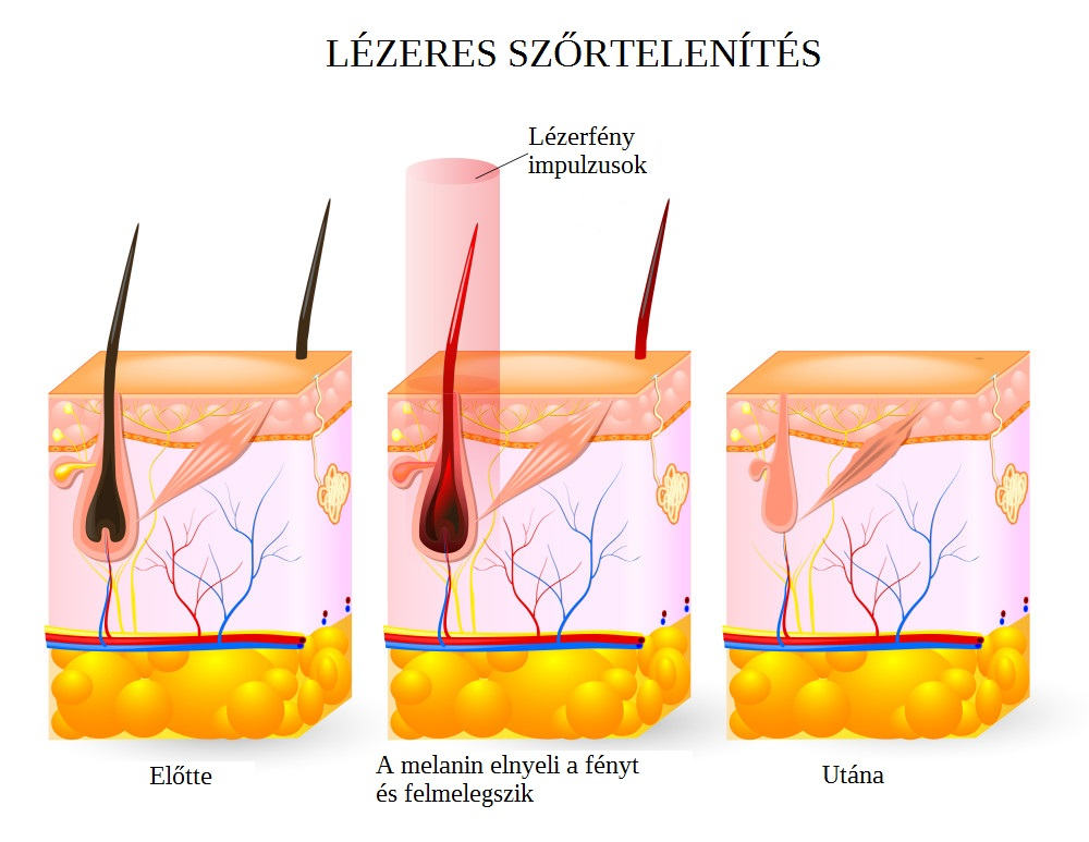 laser-hair-removal-services-in-buffalo-ny-smooth-solutions-med-e1446749245919.jpg