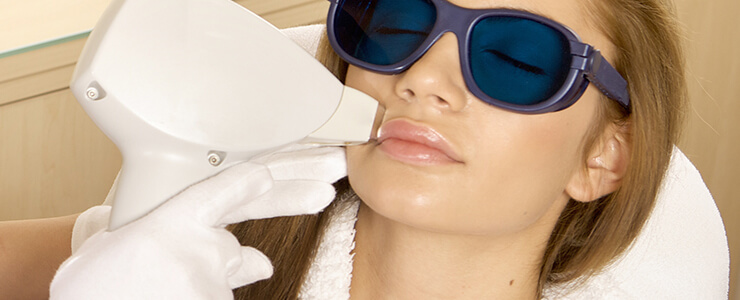 laser-hair-removal-upper-lip.jpg