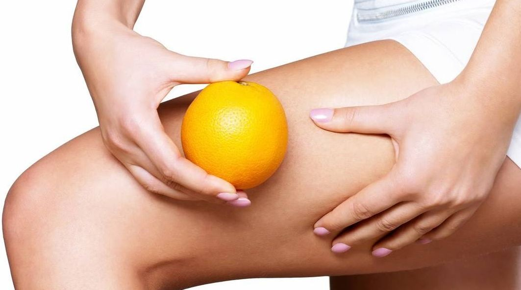 the-invention-of-cellulite-body-image-1460046250_2.jpg