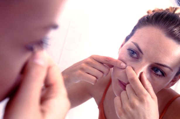 woman-squeezing-pimple-on-her-cheek.jpg