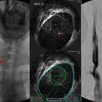 Egy CCSVI műtét képekben - dr. Sclafani