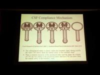 SM és hipoperfúzió - dr. Juurlink előadása videón
