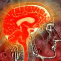 Több idő áll rendelkezésre stroke kezelésben