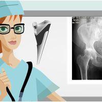 Csípőműtét