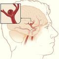 Megnöveli az agyi aneurizma esélyét a korai menopauza