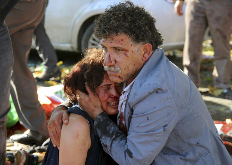 Sebesült férfi tart a karjaiban egy szintén sebesült nőt az ankarai robbantások után. Az eset során legalább 86-an vesztették életüket és 186-an sebesültek meg. (f.: Reuters)