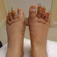 A lábujjaimat egy cipőért!