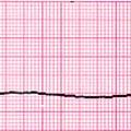 Köhögés és szívmegállás fültisztítás közben