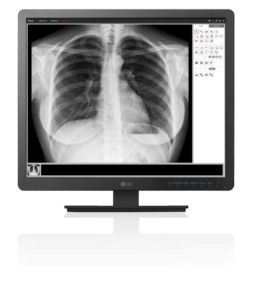 clinical_review_monitor_model_19hk312c.jpg
