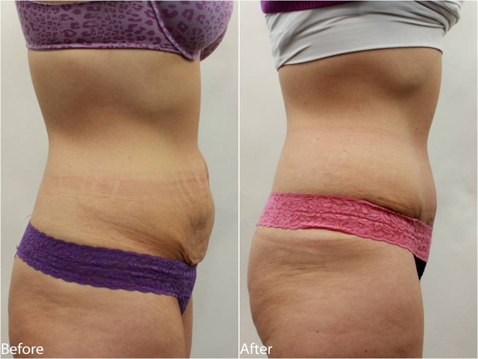 dr_-darm-tummy-tuck-before-and-afters-tb-slide1.jpg