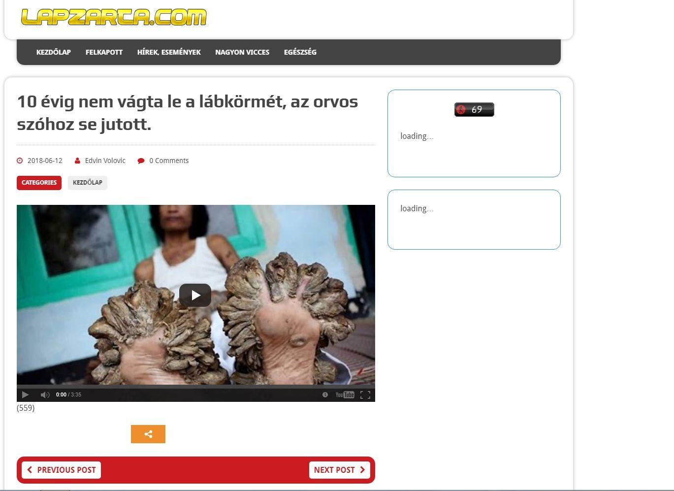 lapzartacom.jpg