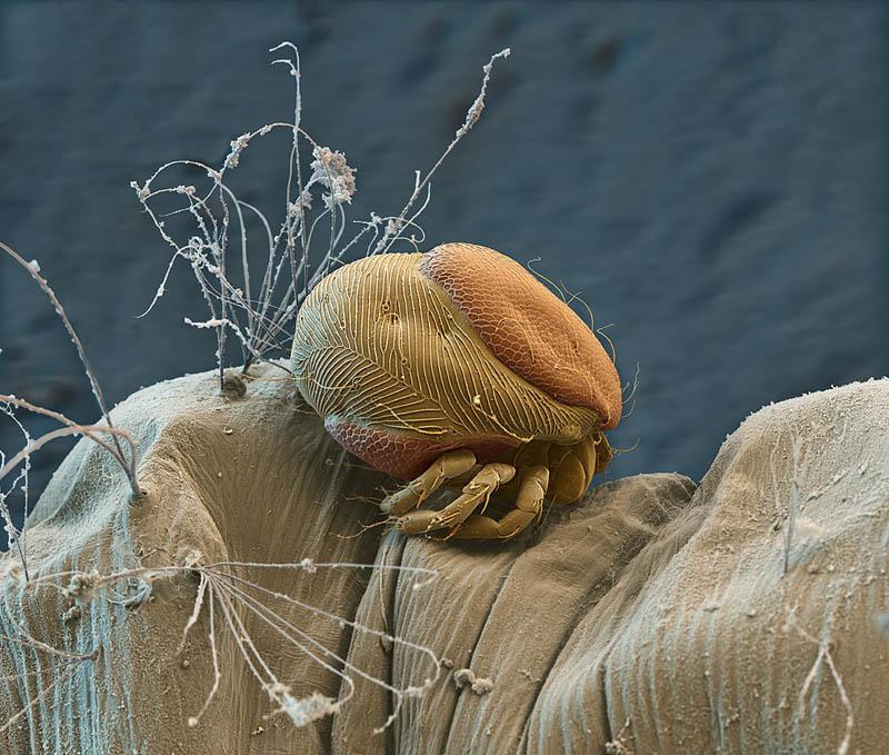 parasitic-mite-on-mosquito-larva-nicoe-ottawa.jpg