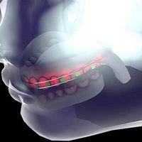Szaúdi tudósok futurisztikus fogszabályozót fejlesztettek