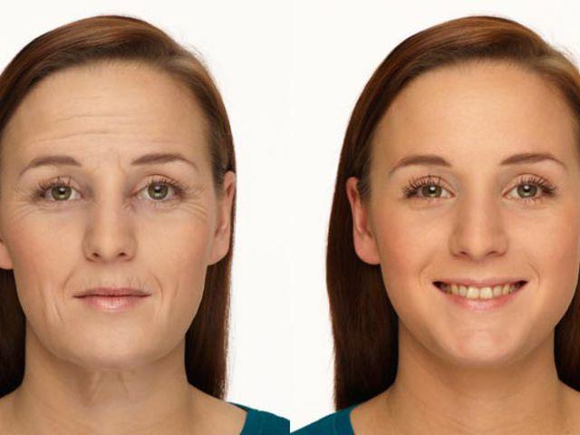 Sokkoló arcképek: segíthetnek leszokni a dohányzásról