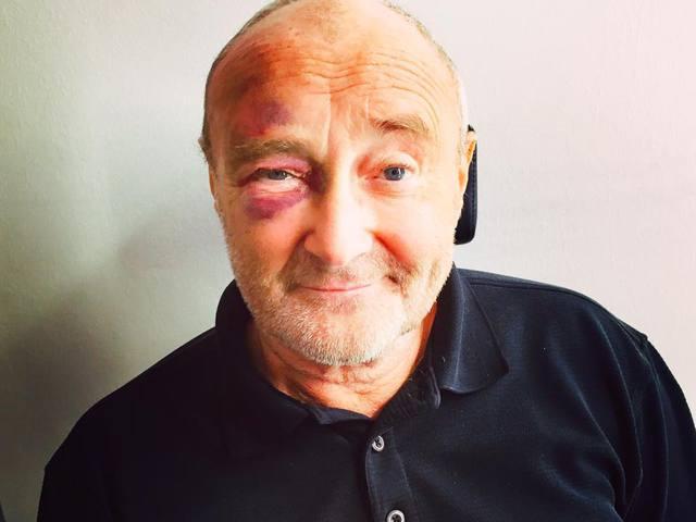 Megsérült vécére menet Phil Collins