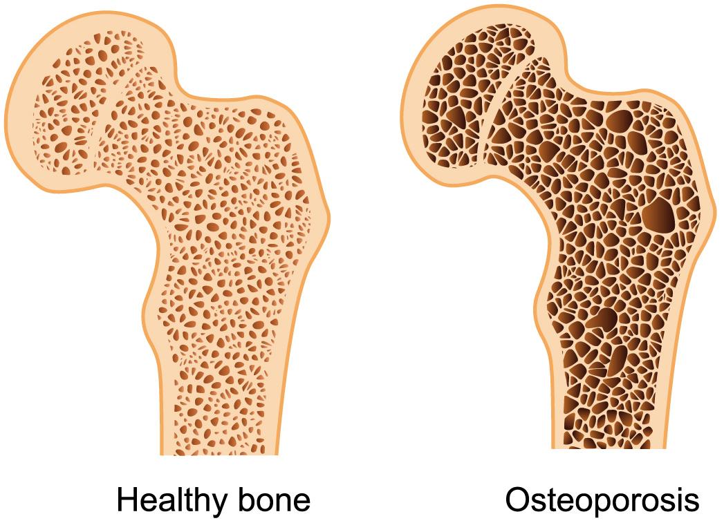 ostoeporosis.jpg