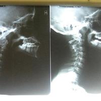 Kiegyenesedett nyaki lordózis