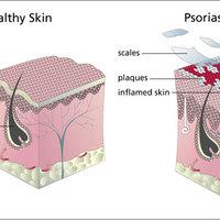 A psoriasis terápiás kezelése 4.