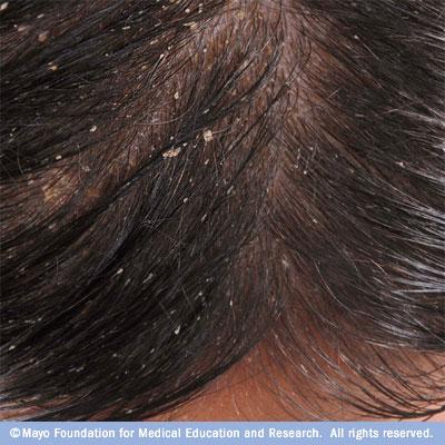 Dermatitis hajgyógyászat