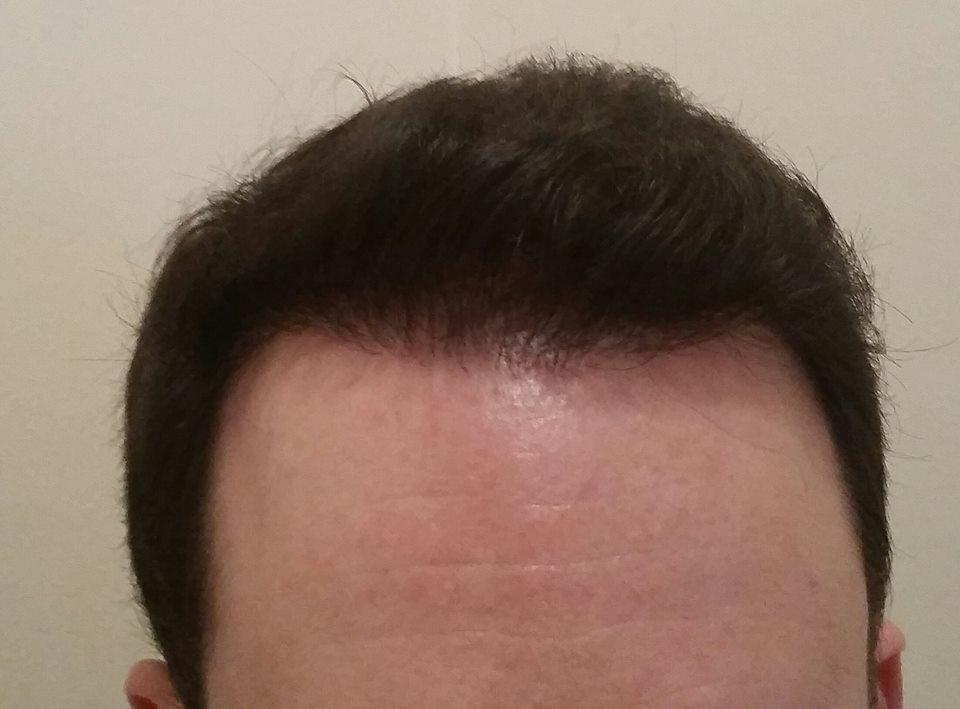 Hajbeültetés után 12 hónappal