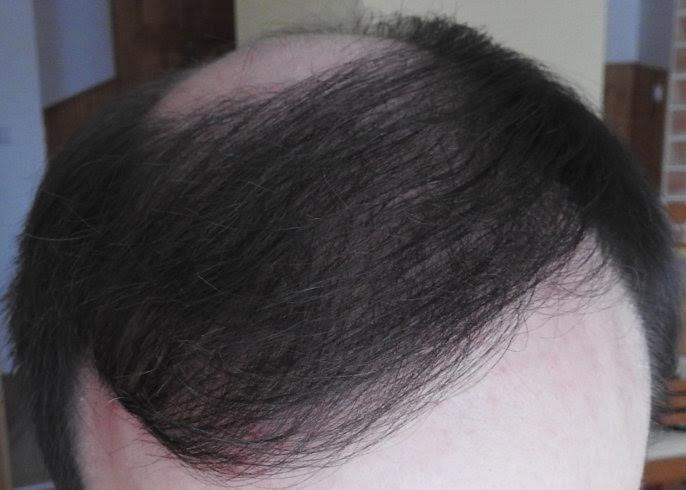 Hajbeültetés után 10 hónappal
