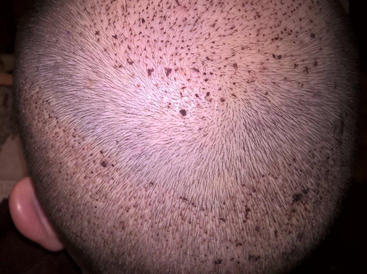 Hajbeültetés után 4 nappal