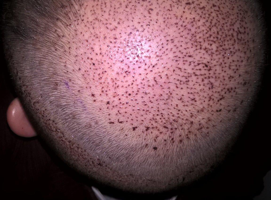 Hajbeültetés után 2 nappal