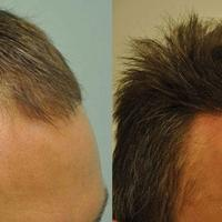 Mire (nem) elég 1000 hajszál beültetése? Mennyi hajat kell átültetni a jó eredményhez?