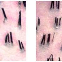 Hajsűrűség és átültethető hajmennyiség