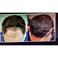 Fue Hair transplant 2171 grafts. Dr. Sikos's result FUE hajbeültetés 2171 graft Sikos dr. páciense