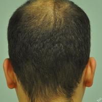 FUE hajbeültetés- hajvétel hajnyírás nélkül