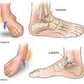 Bokaszalag sérülések