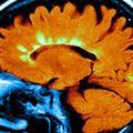 Az alacsony D-vitamin szint növeli a Sclerosis Multiplex kockázatát