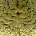 3 hiányzó agy furcsa esete