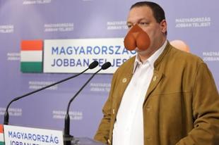 Németh Szilárd rezsibiztost kórházban kezelik nyilatkozata után