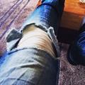 10 jótanács, ha eltörik a lábad