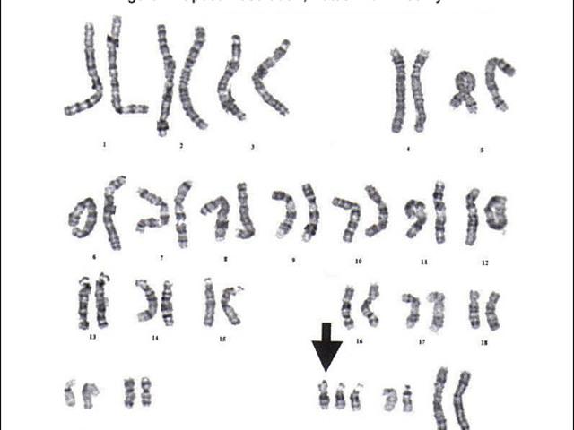 Történetek a genetikai szűrővizsgálatok bizonytalanságáról