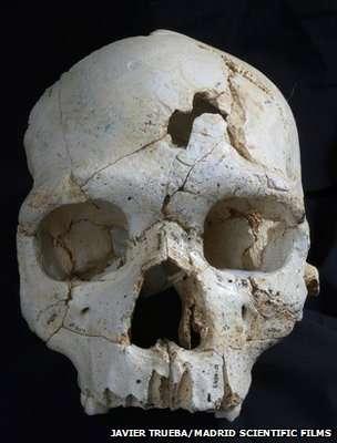 bone2.jpg