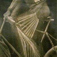 Röntgenkép egy bicikliző biciklisről