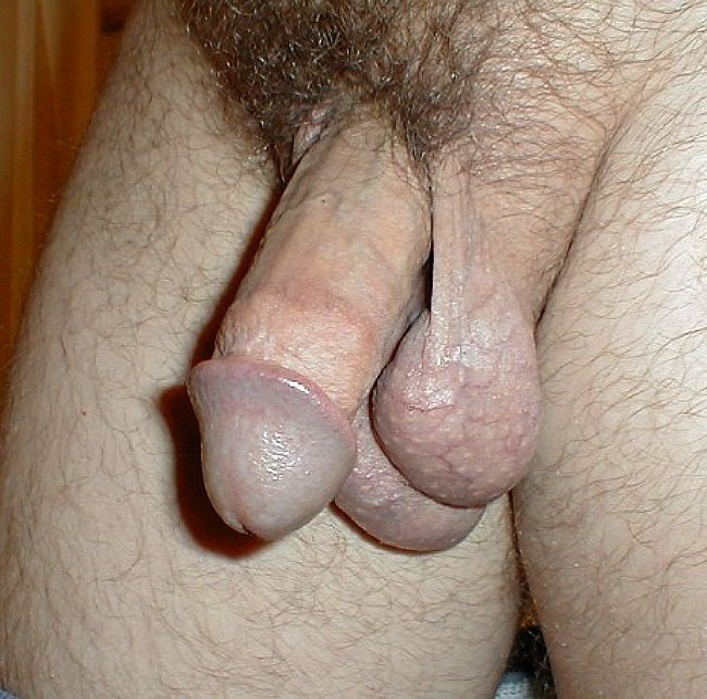 sex life uncircumsized penis erection loss