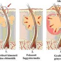 Zsíros bőr-pattanások 2