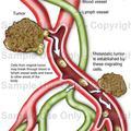 Gyógyszerrezisztens rákos sejtek