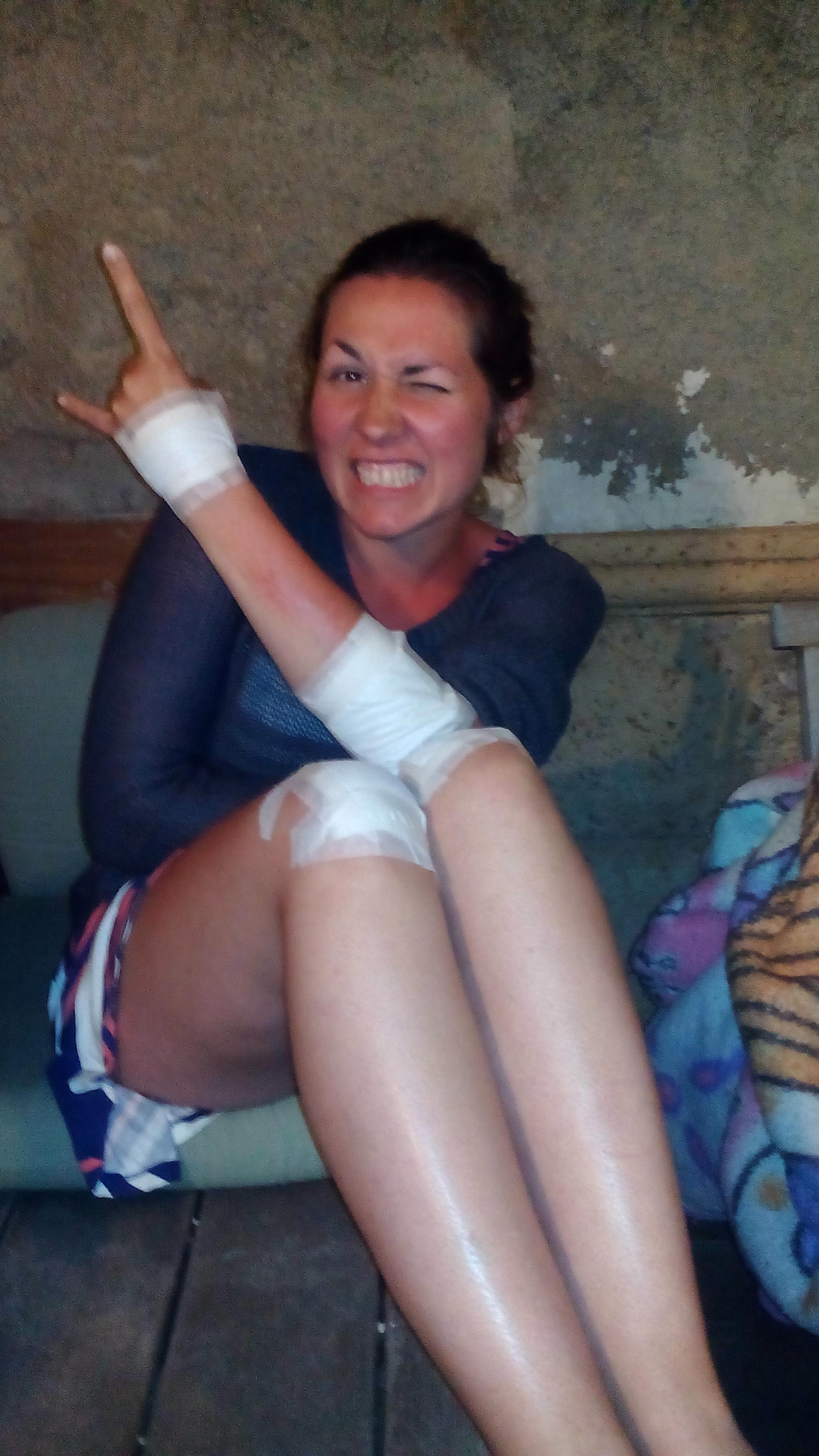 Sári elesett a biciklivel :D