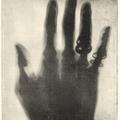 """""""Ennél a fényképezésnél nem kell okvetlen mosolyogni"""" – a Röntgen-fotográfia kezdete Magyarországon (1896)"""